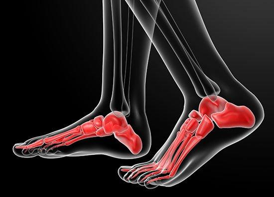 ▷ Die richtigen Schuhe bei Arthrose